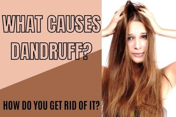 What Causes Dandruff?
